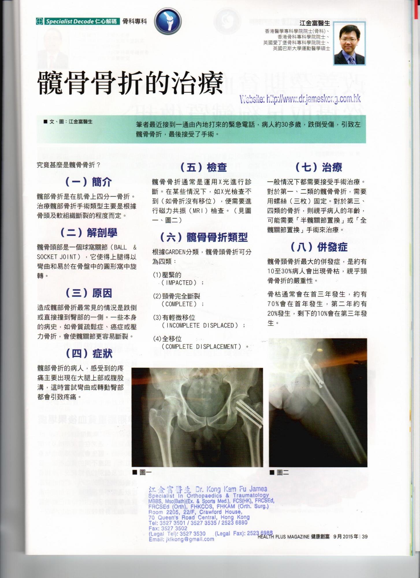 髋骨结构示意图